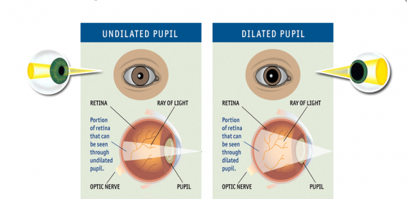 Dilated eye exam, What is it?